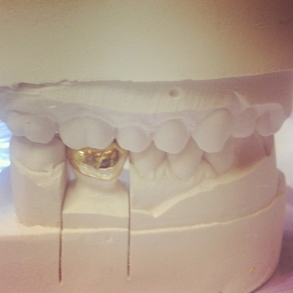 Getting my new gold tooth today... #likeaboss