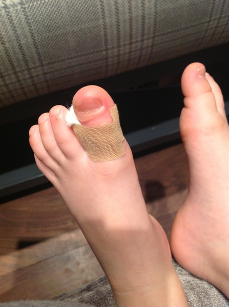 Sarahs disgusting toe (you have been warned) 